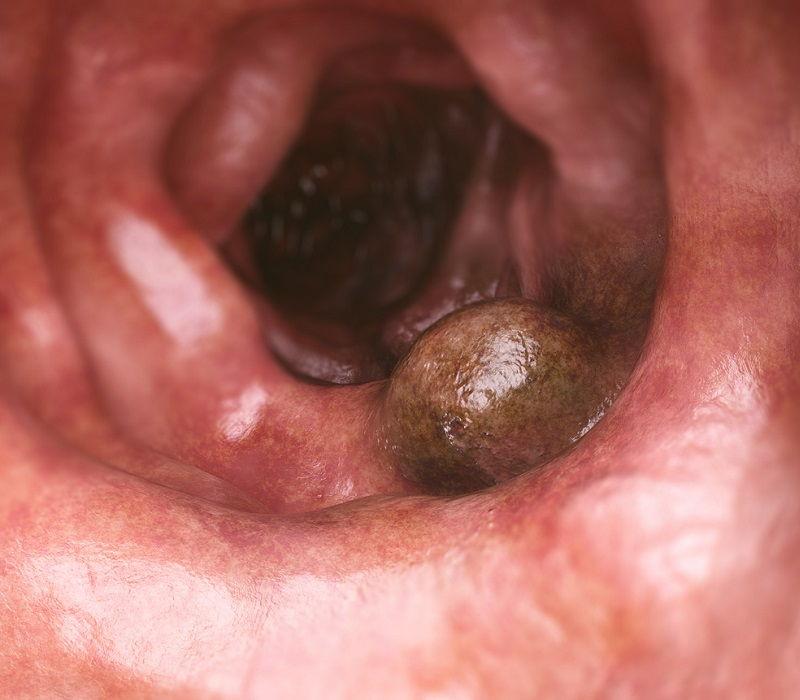 Cáncer de colon, en primer plano