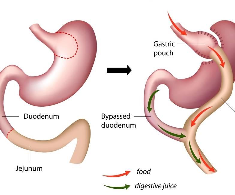 Cirugía bariatrica contra la diabetes