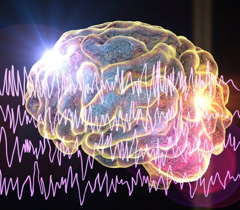 Concepto de epilepsia