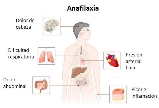 Síntomas de la anafilaxia