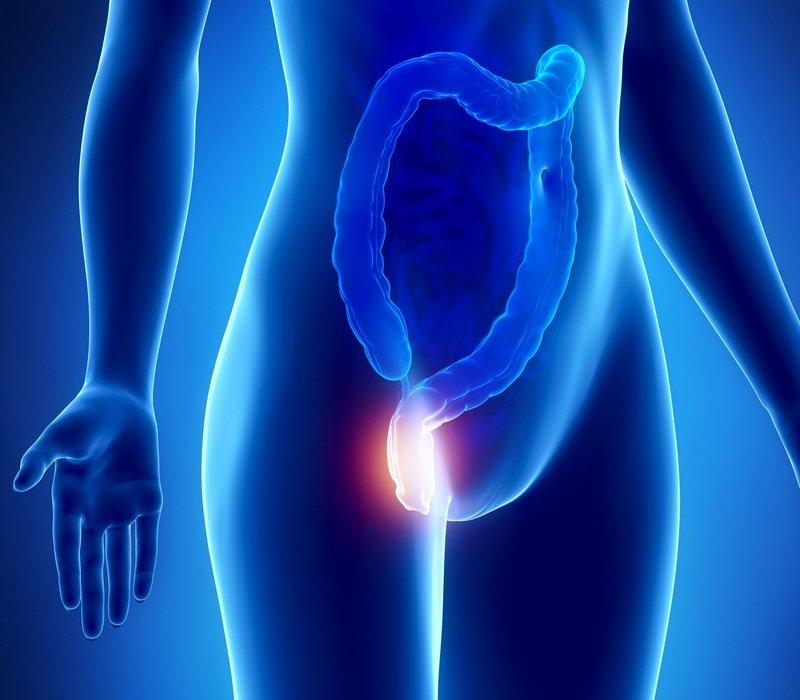 Hemorroides y sus síntomas