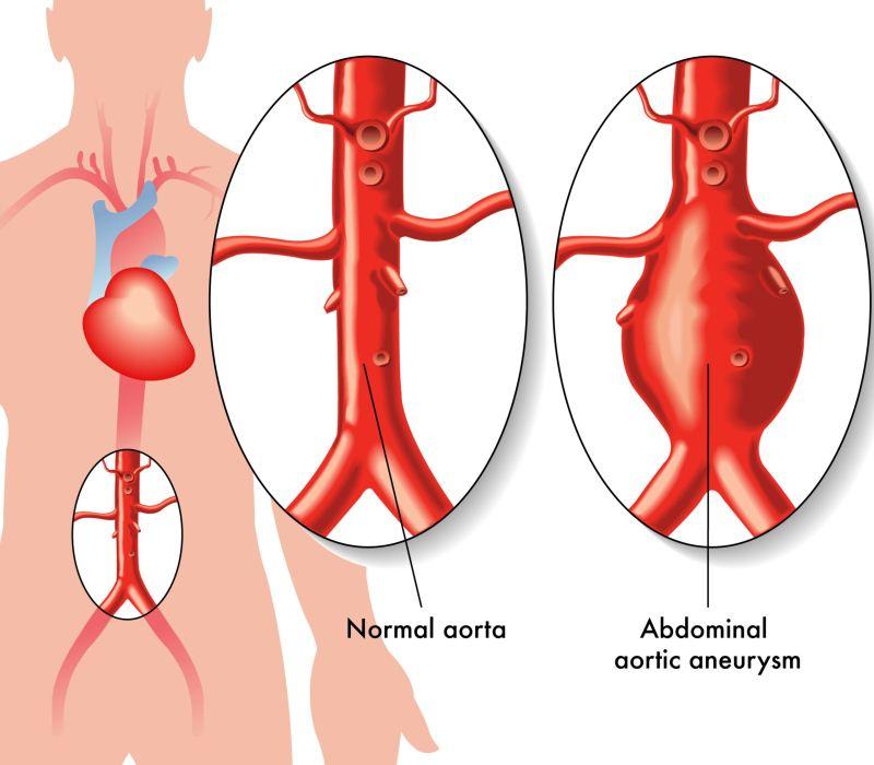 Técnica pionera para el tratamiento del aneurisma de aorta abdominal