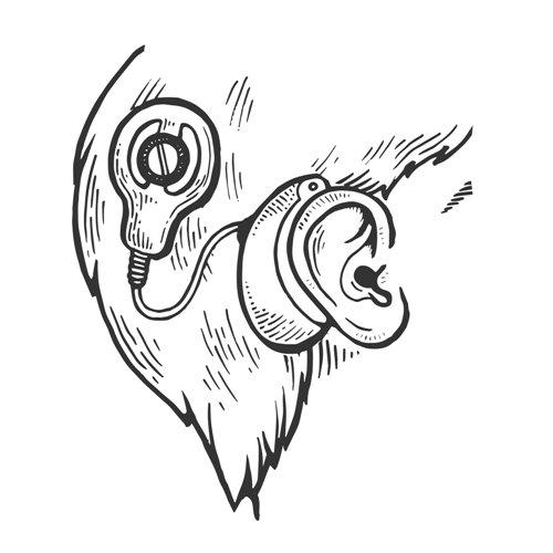 Dibujo de implante coclear
