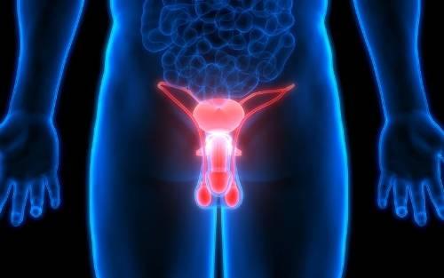 ¿Cómo se realiza la vasectomía?