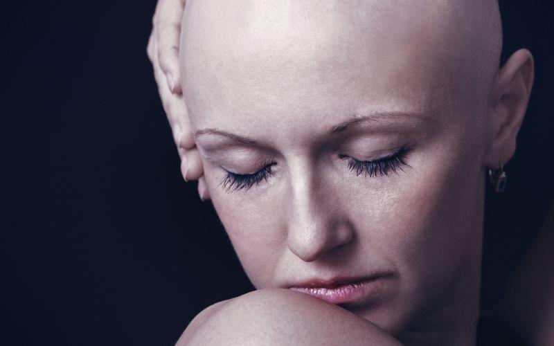 Nueva técnica para dar solución a la alopecia