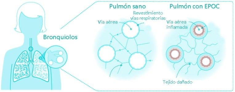 Pulmón sano y pulmón con EPOC