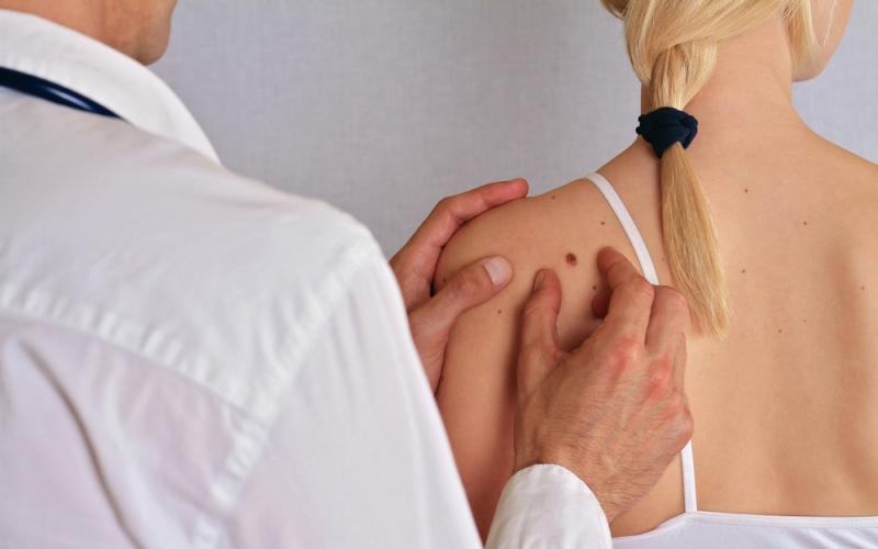 Factores de riesgo para el melanoma