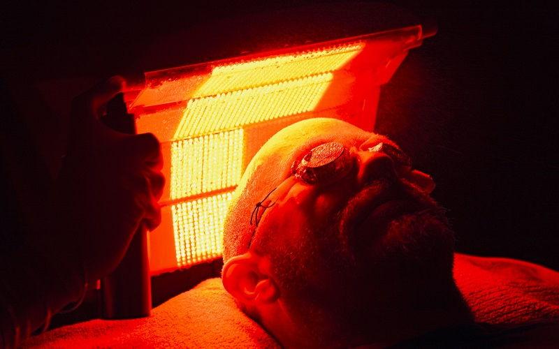 Cómo actúa la terapia fotodinámica en el cáncer de piel