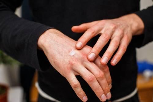 Urticaria Por Frío Qué Es Y Cuáles Son Sus Síntomas Tu Canal De Salud